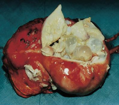 Hypatid Tapeworm Cyst